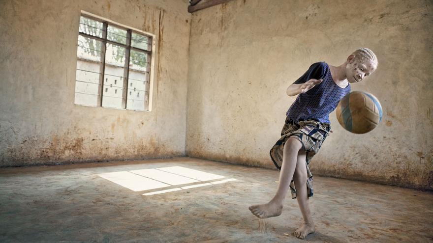 En Tanzania, nueve de cada diez albinos mueren antes de los 30 años.