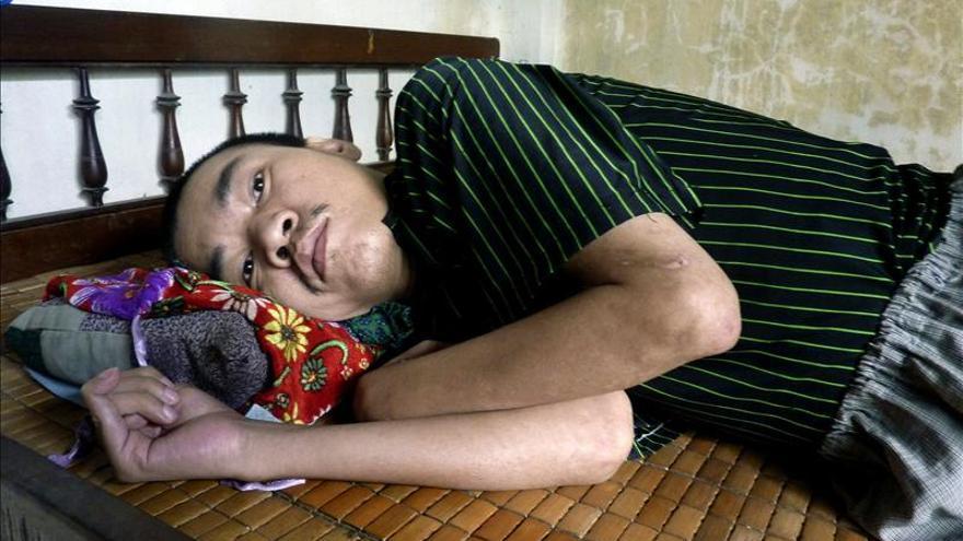 Las armas químicas de EEUU siguen afectando a miles de víctimas en Vietnam