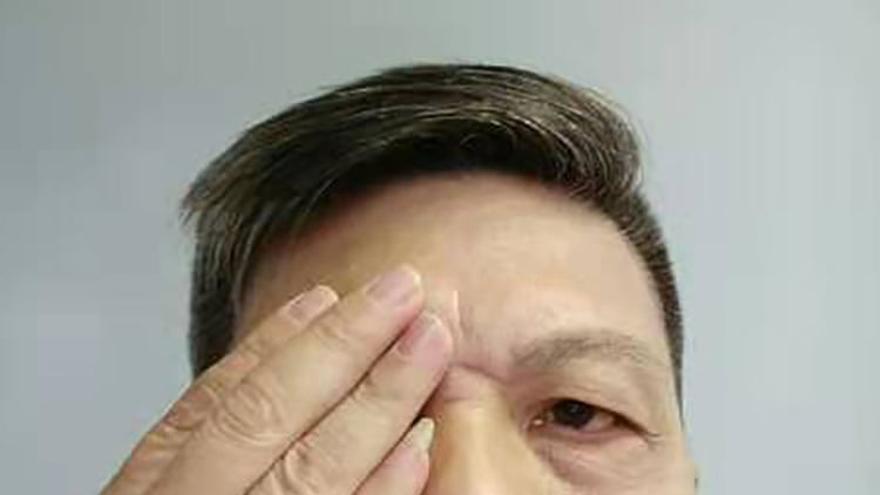 Chen Siming se cubre un ojo con la mano en un gesto de solidaridad con las protestas en Hong Kong.