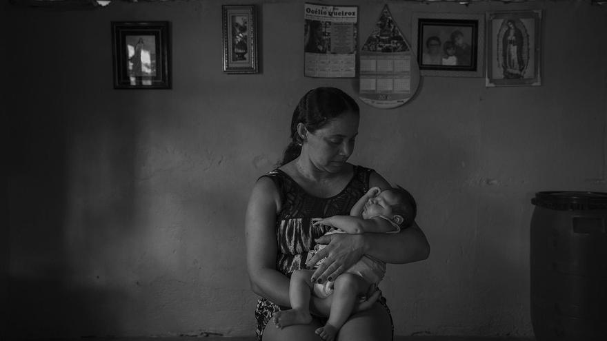 Victims of the Zika Virus / Lalo de Almeida, Brazil, for Folha de São Paulo