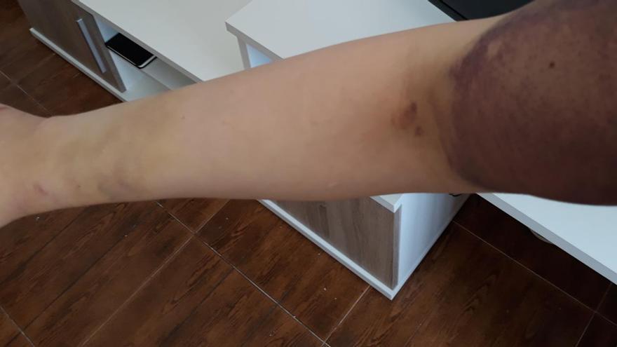 Una joven trans en Algeciras denuncia una agresión policial tras ser expulsada de una discoteca