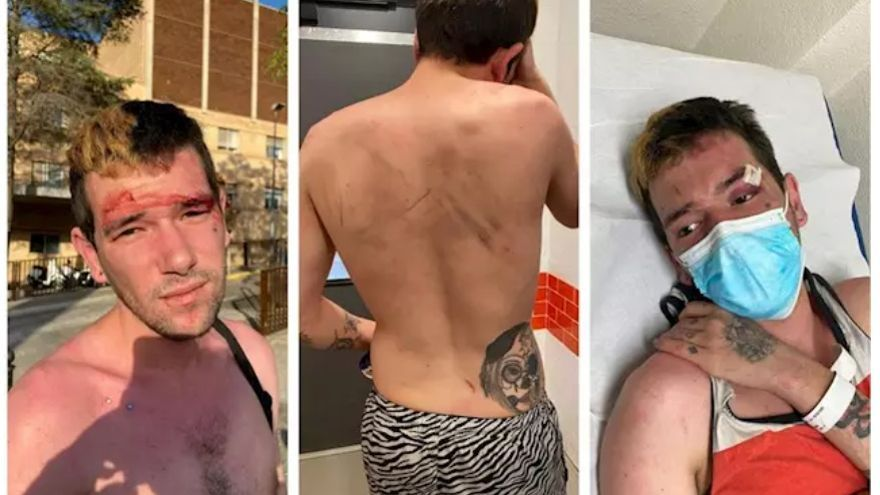 El joven agredido en el Hospital General de Castelló
