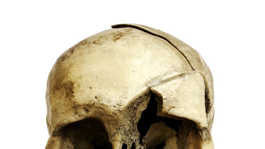 Cráneo con heridas que muestra la evidencia de la guerra entre aborígenes y castellanos en el siglo XV