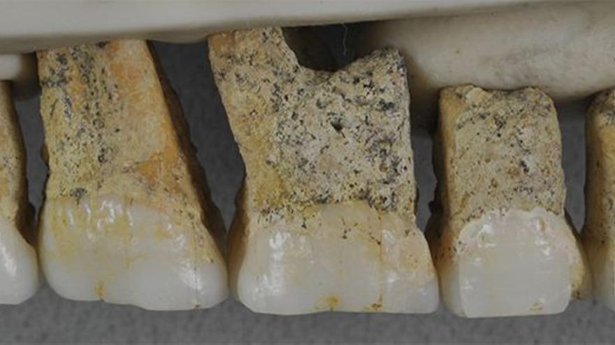 Dientes de homínido, incluyendo molares y premolares, encontrados en la Cueva de Callao.