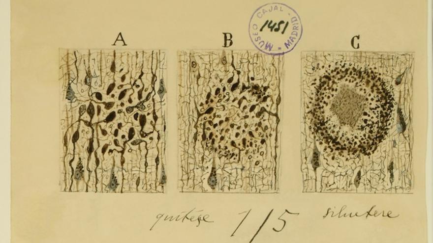 Santiago Ramón y Cajal: formación neuronal del alzeimer