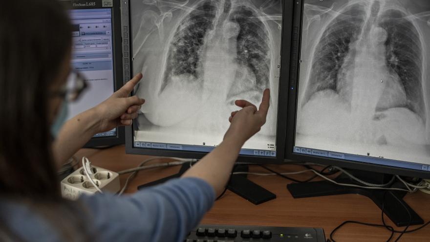 Una trabajadora del área de rayos del hospital muestra unas radiografías de los pulmones de una persona afectada por COVID-19.