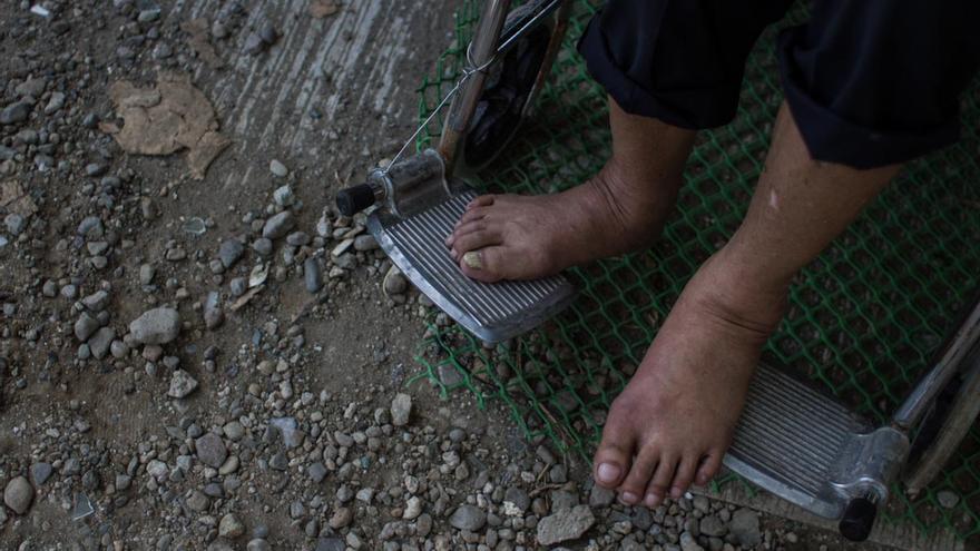 Detalle de los pies de un anciano, víctima del tifón Yolanda, en Tacloban el 13 de noviembre de 2013./ Fotografía: Acción contra el Hambre/Daniel Burgui