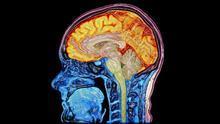 Escáner mejorado digitalmente que muestra el cerebro y la médula espinal