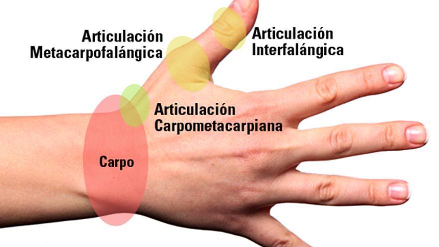 Dolor en el pulgar izquierdo de la mano
