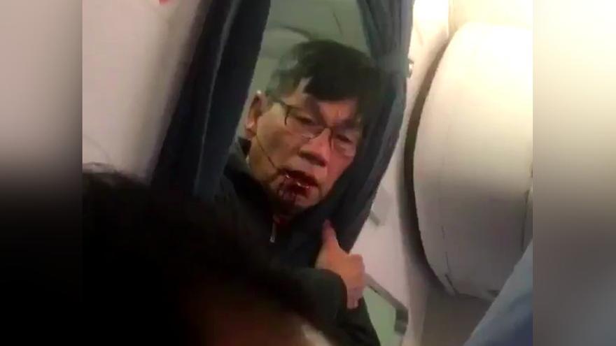 El pasajero de United Airlines después de ser arrastrado a la fuerza del avión