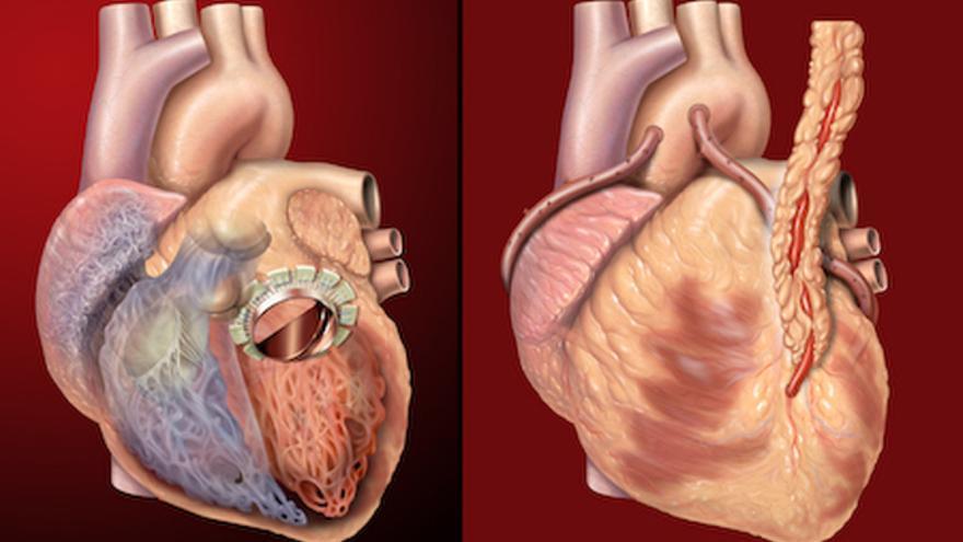 El corazón será uno de los órganos más difíciles de reproducir por impresión 3D
