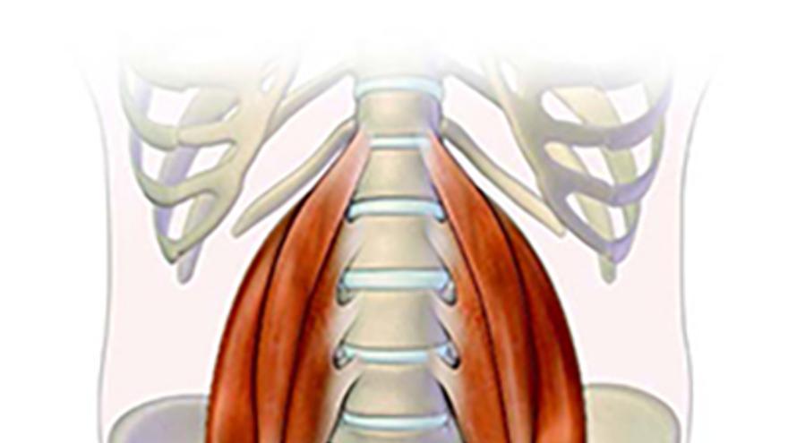 Dolor de espalda: moverse es el mejor analgésico