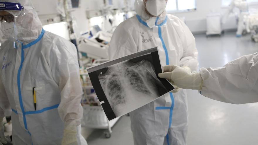 La acumulación de virus en los pulmones, principal causa de muerte por covid-19