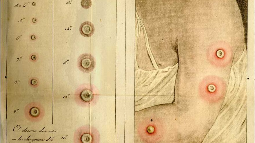 """Fases de los """"granos de la vacuna"""". Lámina de la introducción de Francisco Javier Balmis"""