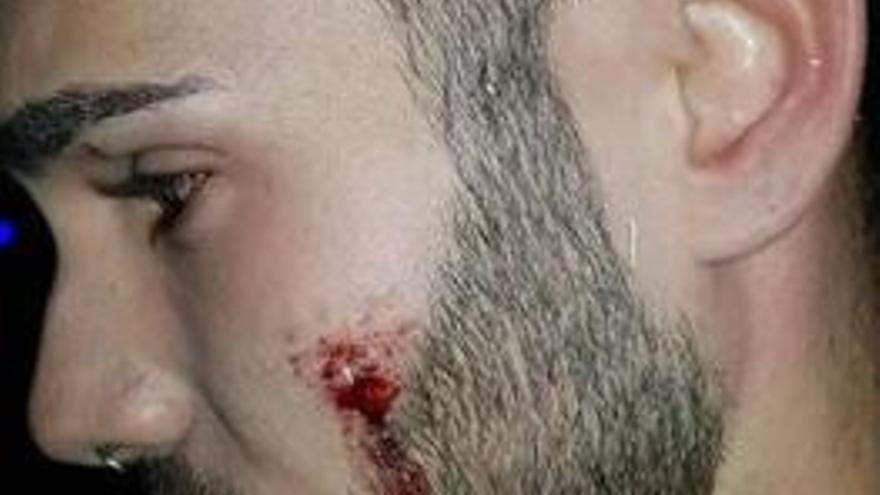 Agresión homófoba a un joven en un discoteca de Alcorcón