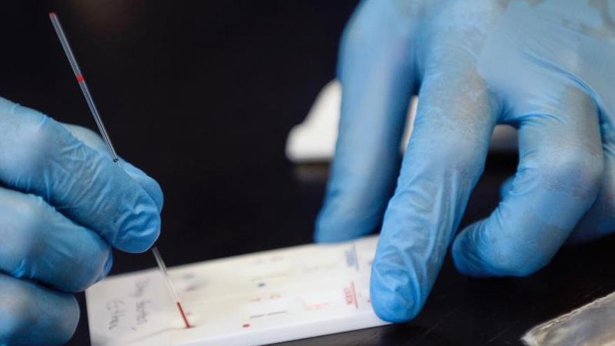 Los anticuerpos de un paciente recuperado del SARS inhiben el SARS-CoV-2