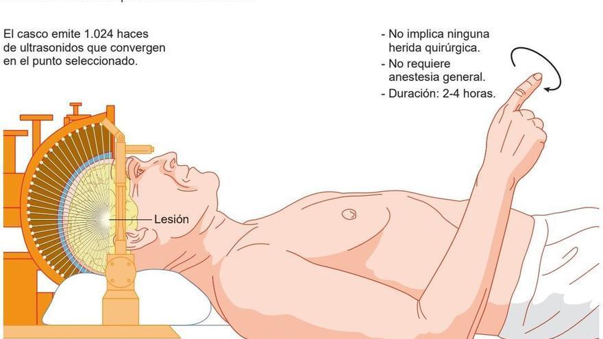 Clínica Universidad de Navarra incorpora ultrasonidos para tratar sin cirugía el temblor del Parkinson