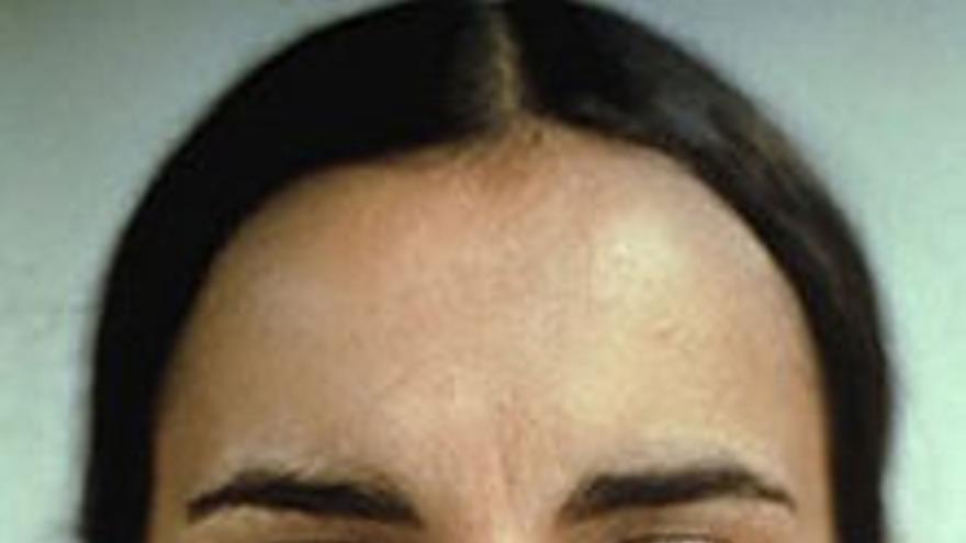 Ana Mendieta: Untitled (Facial_Hair_Transplants) 1972