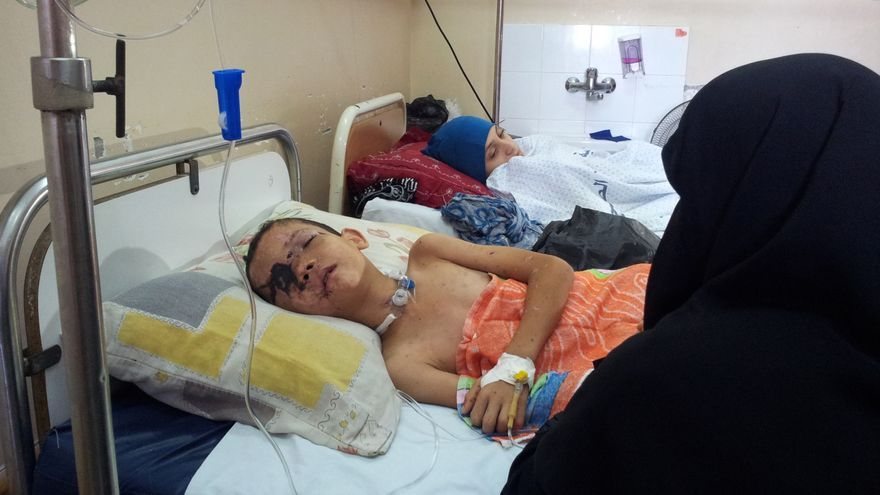 Mohammed Badran espera volver a recuperar la vista del único ojo que tiene