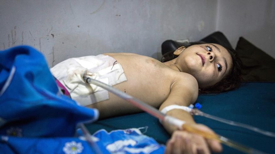 Con solo 5 años, este niño se recupera de una operación de abdomen tras ser alcanzado por la metralla a raíz de varios ataques aéreos en el este de Alepo, en Siria. Desde que comenzó en 2011, el conflicto sirio ha provocado la mayor crisis de desplazamiento desde la Segunda Guerra Mundial. Millones de personas necesitan desesperadamente ayuda humanitaria para sobrevivir. Además, la situación durante los meses del asedio ha sido de una crueldad sin parangón. Incluso los pacientes, los hospitales, el personal médico y las ambulancias han sido objetivo deliberado de los bombardeos por parte de las fuerzas gubernamentales sirias y rusas. © Karam Almasri