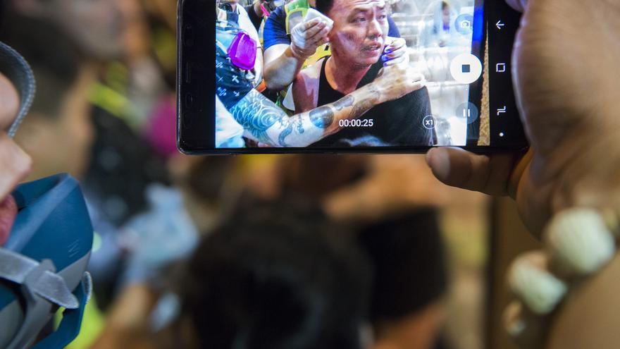 Una persona graba a un herido durante las protestas de Hong Kong
