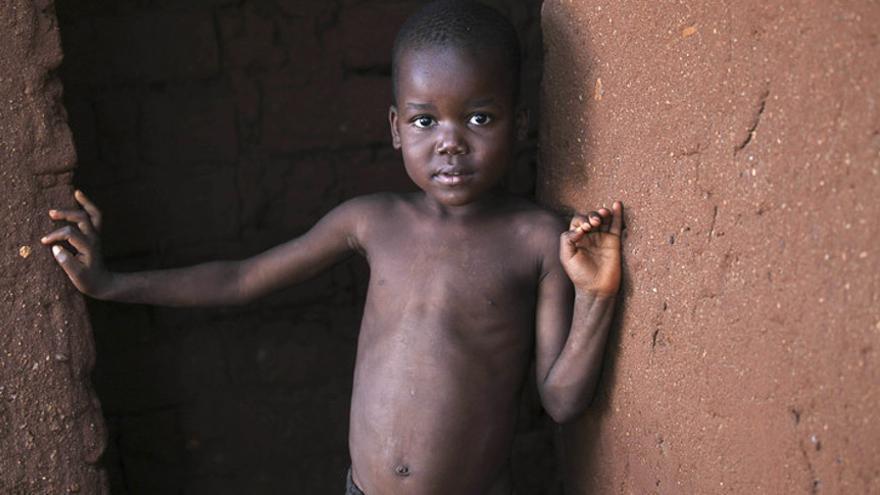 Gift tiene 5 años y vive en Malaui. Uno de cada nueve niños muere antes de cumplir cinco años en África subsahariana. La diarrea, la malaria y la neumonía causan más de la mitad de las muertes infantiles en esta parte del mundo. En 2011, casi siete millones de niños menores murieron en el mundo, la mayor parte de enfermedades prevenibles. (Graeme Robertson/ActionAid)