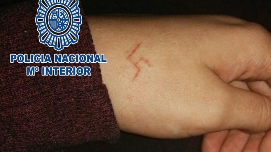 Seis detenidos en Madrid por marcar una esvástica a una chica con un objeto candente