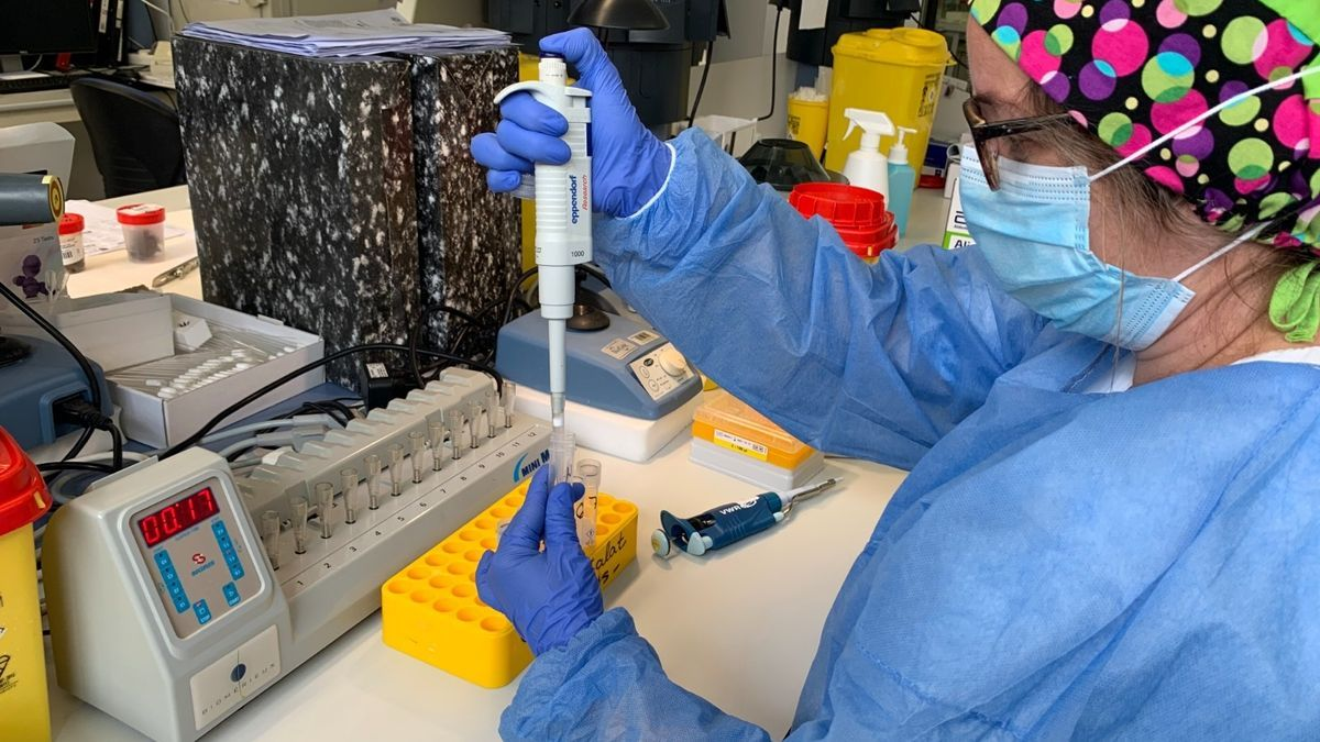 Archivo - Prueba PCR