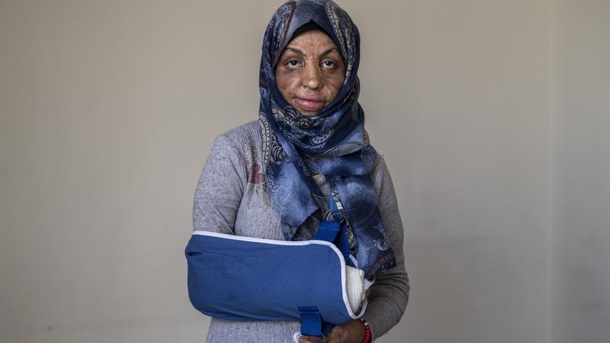 Cuando Ikhteyar tenía cuatro años, explotó una precaria cocina de gas en su casa en Yemen, provocando graves quemaduras por todo su cuerpo.