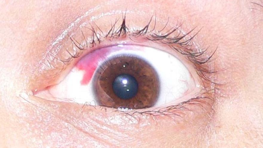 Se dolor los ojos produce porque en