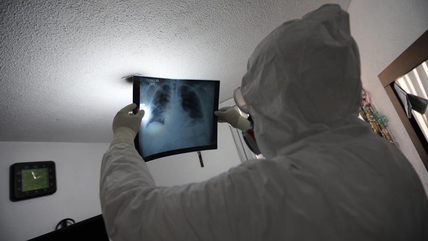 Evalúan el uso de inteligencia artificial para identificar neumonía en COVID