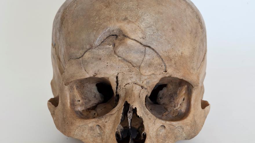Cráneo de Gran Canaria con un trauma.