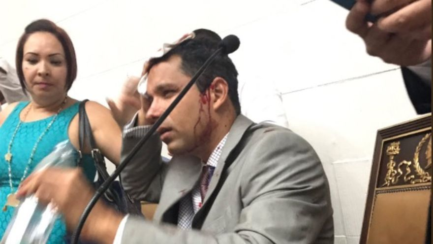 El diputado venezolano Juan Guaidó, herido tras el ataque al Parlamento