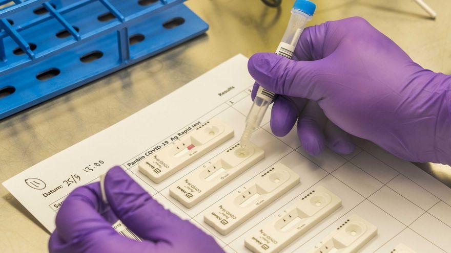Canarias comienza a utilizar esta semana los test de antígenos para el diagnóstico precoz de la COVID-19