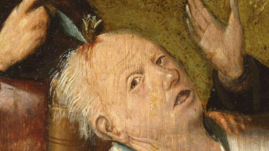 'La extracción de la piedra de la locura' (1501 – 1505)