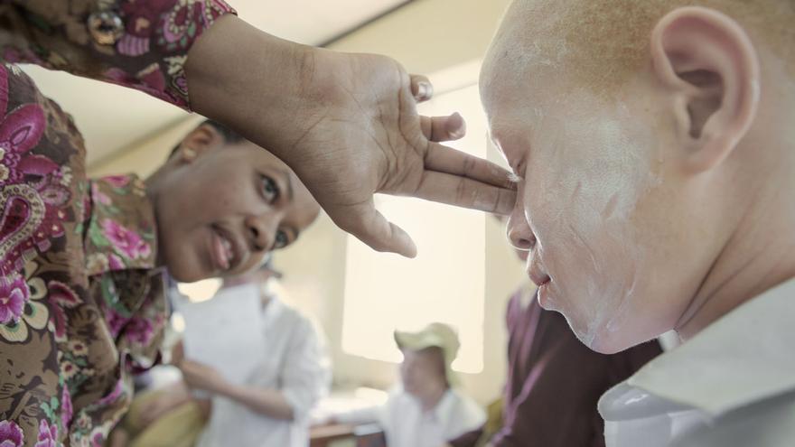 Kilisun (Kilimanjaro Suncare) es una crema foto-protectora especialmente diseñada para las personas con albinismo del África subsahariana.