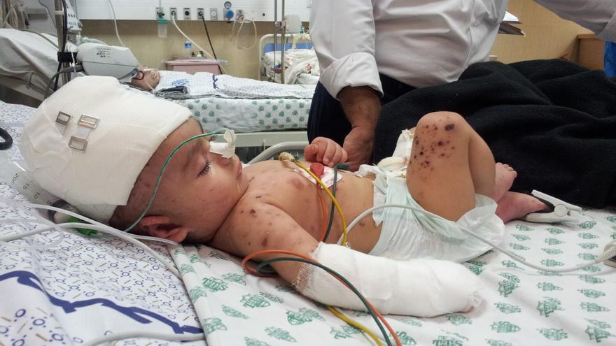 Bebé palestino herido por bombardeos israelíes durante operación militar israelí Margen Protector en 2014.   FOTO: Isabel Pérez.