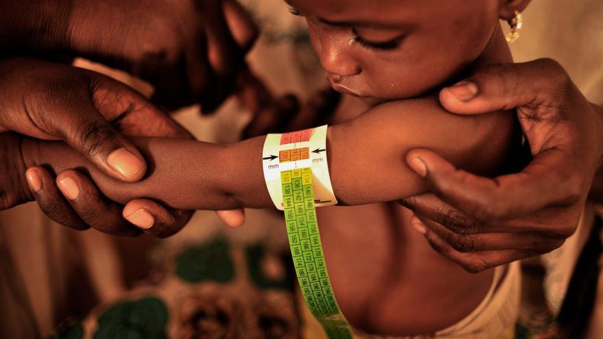 Los equipos de MSF revisan a los niños recién ingresados en el área de evaluación de Fori.