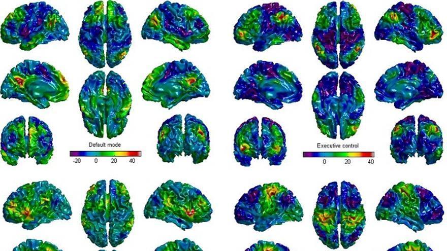 Cerebros escaneados con la IA china