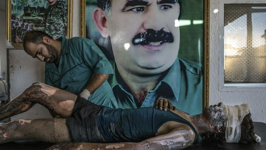 World Press Photo: © Mauricio Lima - IS Fighter Treated at Kurdish Hospital