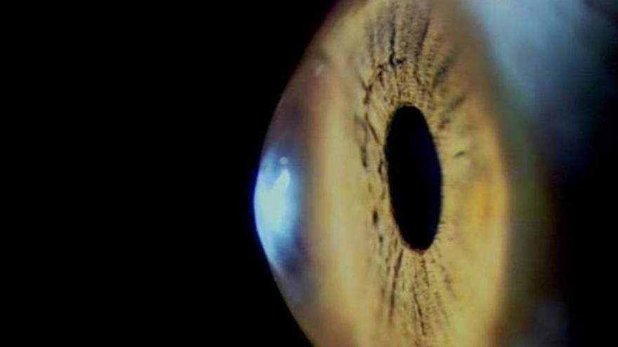 """Nuevas técnicas de imagen permiten tratar patologías oculares """"a la carta"""""""
