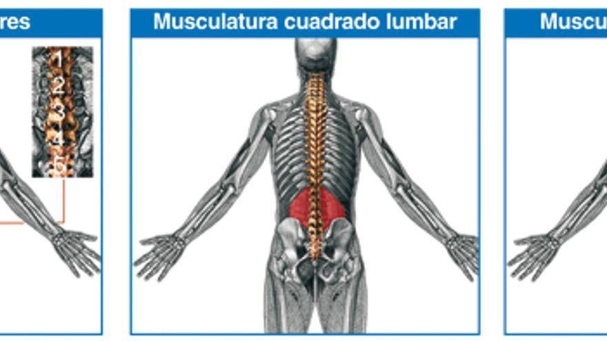 Tratamiento de la lumbalgia