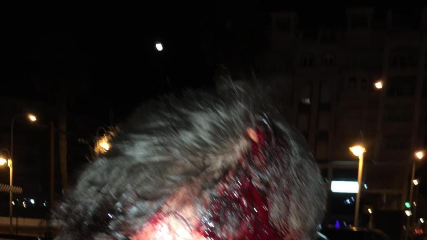 Fotografía facilitada por varios sindicatos policiales de uno de los agentes supuestamente agredidos por varios jóvenes en Melilla.