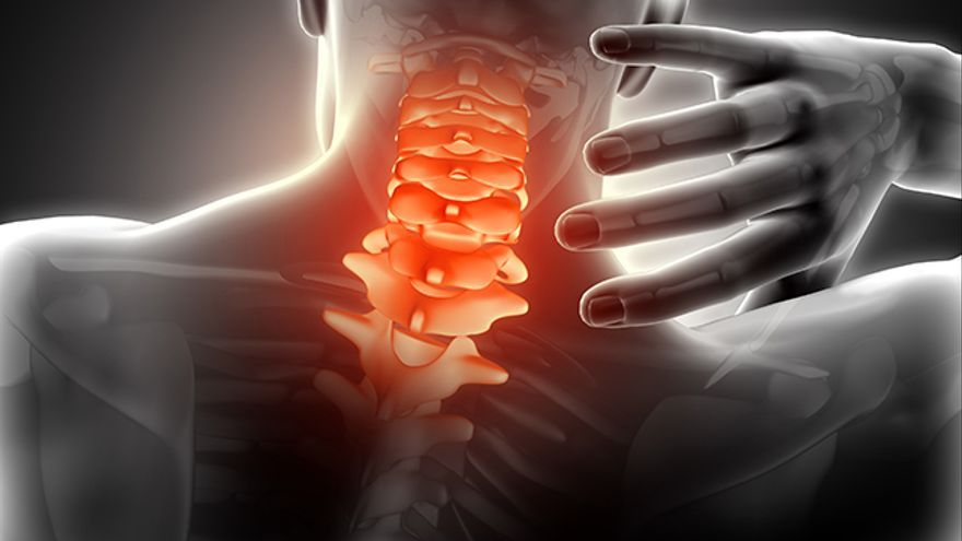 sintomas de esguince cervical