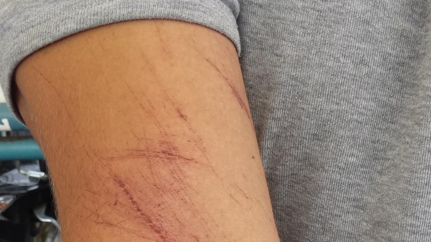 Akram muestra las heridas en sus brazos.   Beatriz Rivera