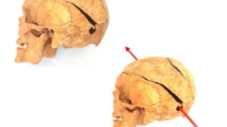 Imagen del cráneo de una víctima del franquismo exhumada e identificada por el grupo Paleolab. Imagen: Paleolab.