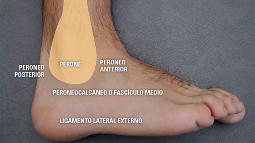 fisioterapia,esguince de tobillo