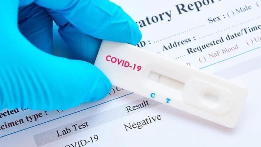 Test de la prueba PCR.