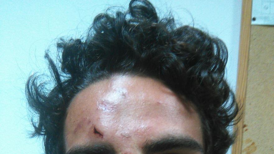 Hijo del portavoz de Votemos La Oliva, Álvaro de Astica, tras sufrir una agresión en las Fiestas del Carmen