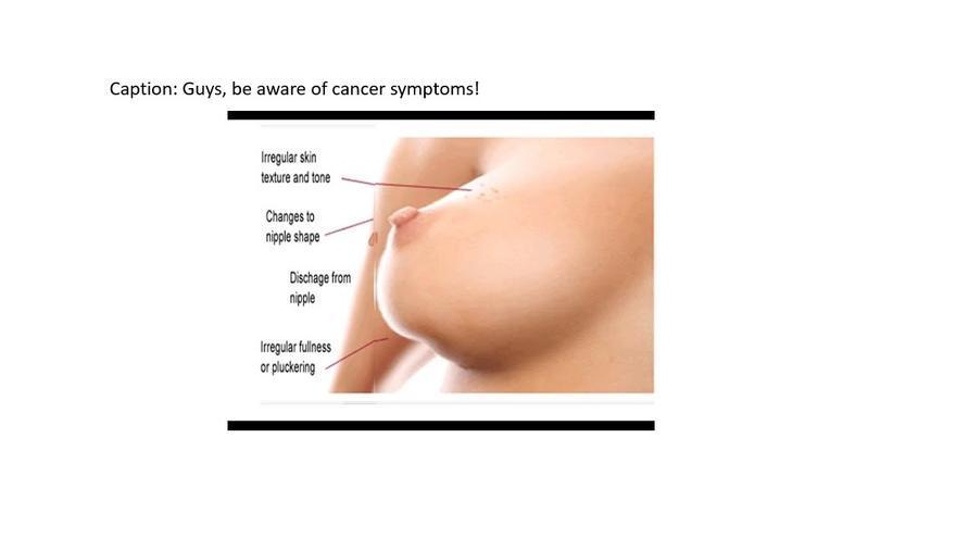 Una imagen advirtiendo de los síntomas del cáncer de mama